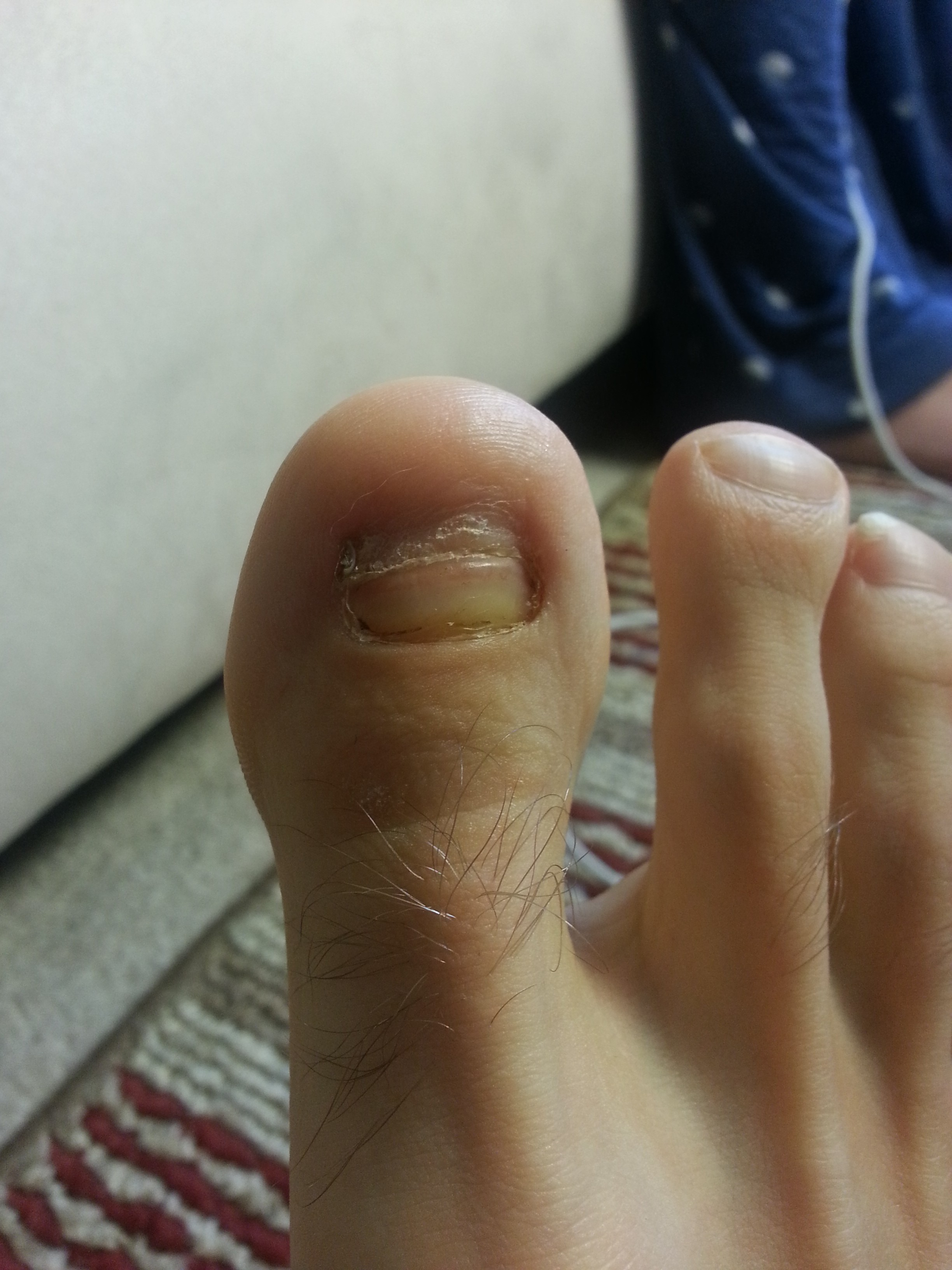 Is Tea Tree Oil A Miracle Cure For Persistent Toe Fungus
